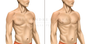 cirurgia de ginecomastia masculina no rio de janeiro