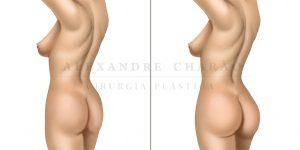 gluteoplastia - antes e depois