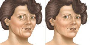 lifting facial - antes e depois