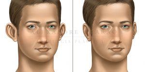 otoplastia - antes e depois