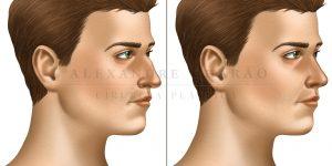 rinoplastia - antes e depois