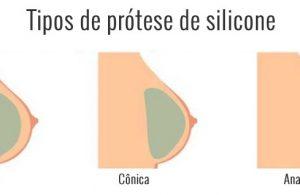 tipos de silicone RJ
